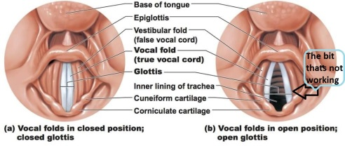The bit thats not working vocal cords